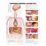 Diabetes Chart - Understanding Diabetes