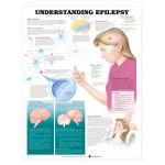 Epilepsy Chart - Understanding Epilepsy