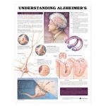 Alzheimers  - Understanding Alzheimers Disease