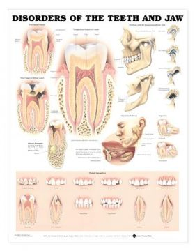Teeth Jaw Chart - Disorders of the Teeth and Jaw