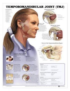 TMJ Temporomandibular Joint Chart Jaw Syndrome