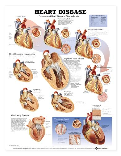 Laminated Wall Chart Understanding Heart Disease chart