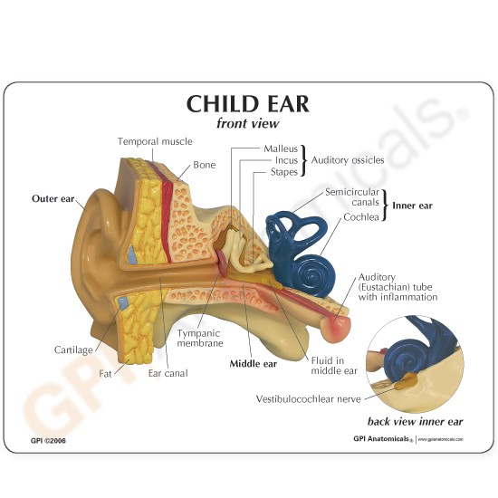 Ear Anatomical Model Child Normal And Otitis Media