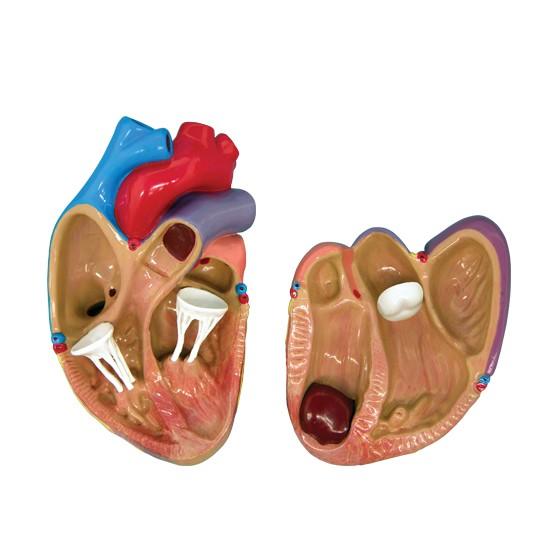 Heart Mini Set of 3 Anatomical Model Normal Diseased