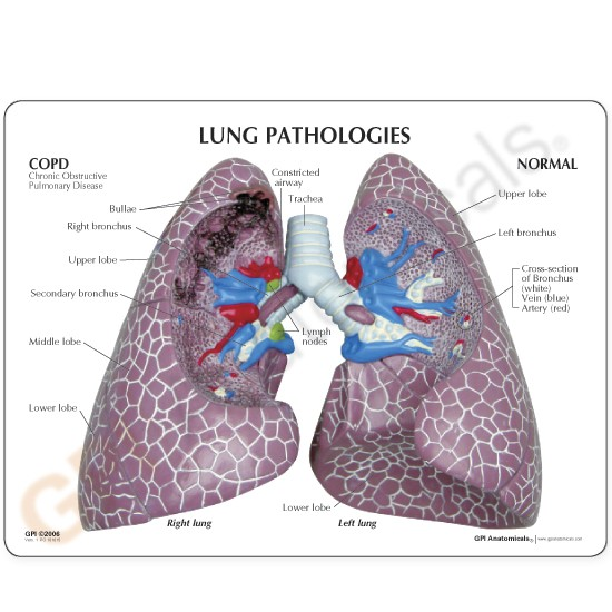 LFA #3110 COPD LungCOPD Lung Anatomical Model Set with Pathologies ...
