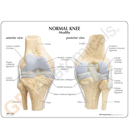 Knee anatomical model 4 stage oosteoarthritis knee osteoarthritis anatomical model set 4 stage lfa 1100 ccuart Images