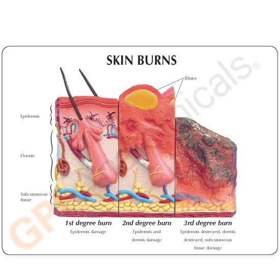 Skin Burn Anatomical Model Two Sided 1st 3rd Degree Burns And Normal