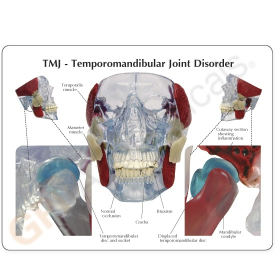 Lfa 2880 Tmj Temporomandibular Joint Model
