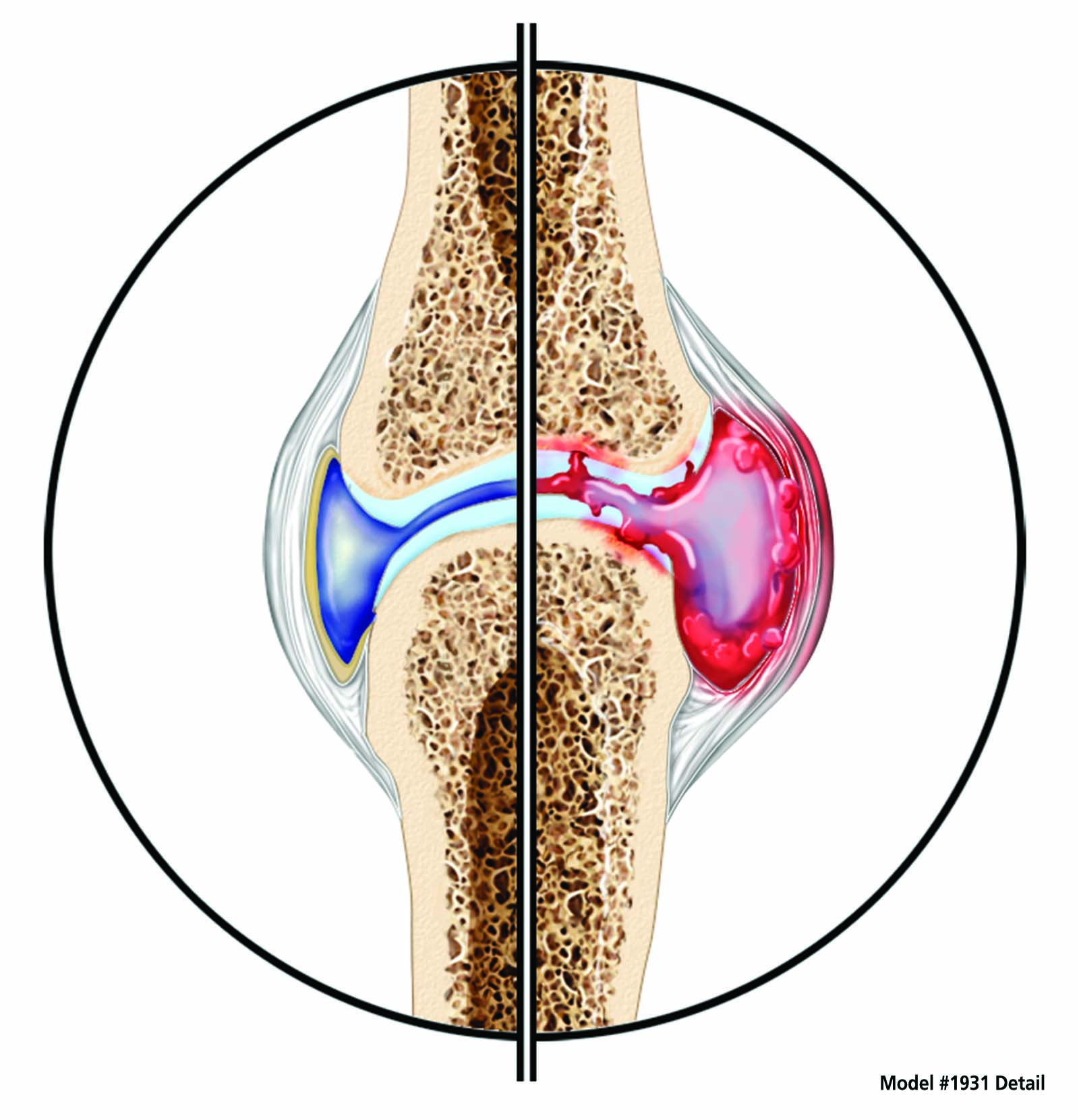 Hand Rheumatoid Arthritis RA Anatomical Model