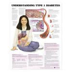 Diabetes Chart - Understanding Type 1 Diabetes