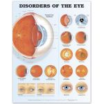 Eye Chart -Disorders of the Eye