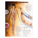 DVT  Deep Vein Thrombosis  Chart