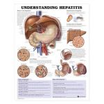 Hepatitis Chart - Understanding Hepatitis
