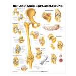 Hip Knee Chart - Hip and Knee Inflammations