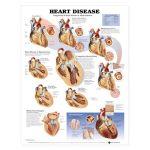 Heart Disease Chart - Heart Disease
