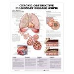 COPD Chronic Obstructive Pulmonary Disease Chart