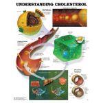 Cholesterol - Understanding Cholesterol Chart