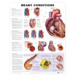 Heart Conditions Chart - Heart Conditions