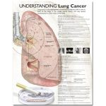 Lung Cancer Chart - Understanding Lung Cancer