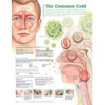 Cold Chart -Understanding the Common Cold