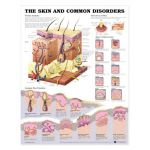 Skin Chart - The Skin and Common Disorders