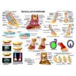 Equine Chart - Horse Navicular Syndrome Wall Chart