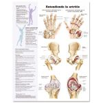 Arthritis Chart - Understanding Arthritis Spanish Language