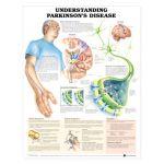 Parkinson's - Understanding Parkinson's Disease Chart