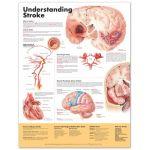 Stroke Chart - Understanding Stroke