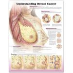 Breast Cancer Chart - Understanding Breast Cancer