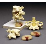 Lumbar Vertebrae 4-part  Anatomical Teaching Model
