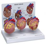 Heart Mini Set of 3 Anatomical Model