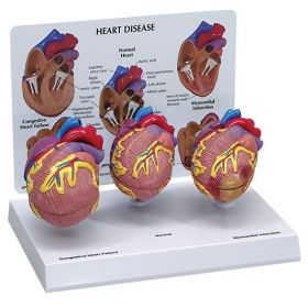 Heart Mini Set of 3 Anatomical Model
