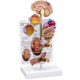 Hypertension Anatomical Model Set of 4