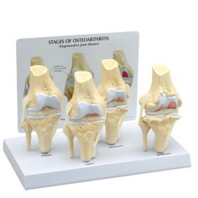 Knee Osteoarthritis Anatomical Model