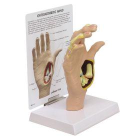 Hand Osteoarthritis OA Anatomical Model