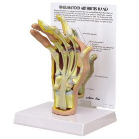 Hand Rheumatoid Arthritis RA Anatomical Model