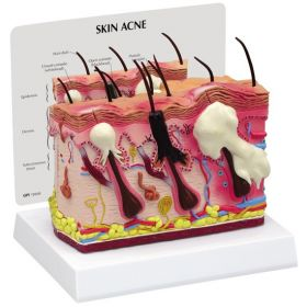 Acne  Anatomical Model