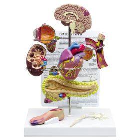 Diabetes Anatomical Model Set