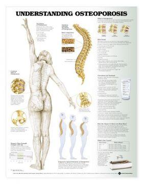 Osteoporosis Chart - Understanding Osteoporosis