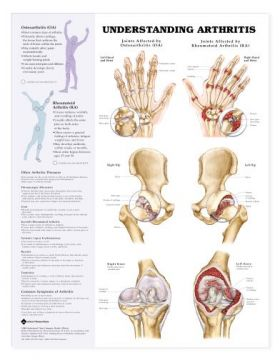 Arthritis Chart - Understanding Arthritis