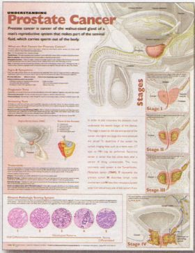 Prostate Cancer Chart - Understanding Prostate Cancer