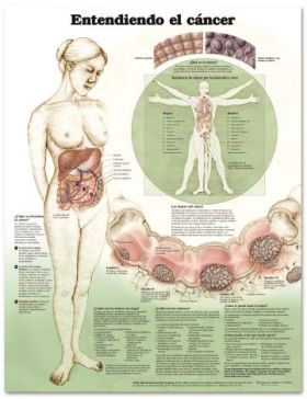Cancer Chart - Understanding Cancer Spanish Language