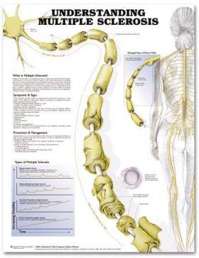MS Multiple Sclerosis Chart - Understanding Multiple Sclerosis