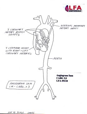 Angiogram Sam IM CABG X3 with three Coronary Artery Bypass Grafts. Anatomical Training Model, Cyroacrylic